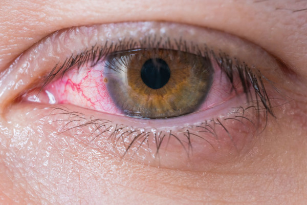 Summit Eye Care:  What's New with Allergies?