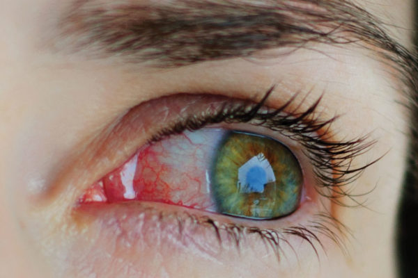 Summit Eye Care: Allergies Vs Dry Eye