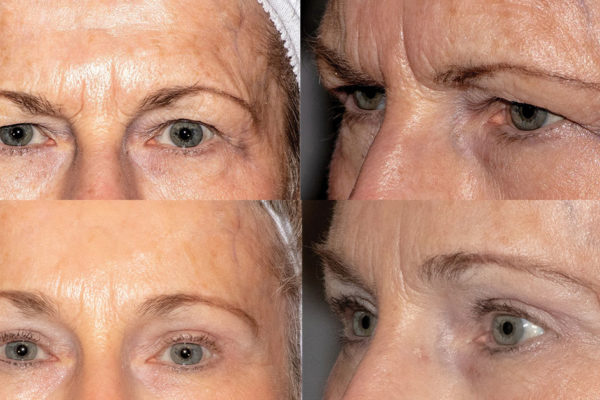 The Goldman Center for Facial Plastic Surgery: A reflection you'll love!